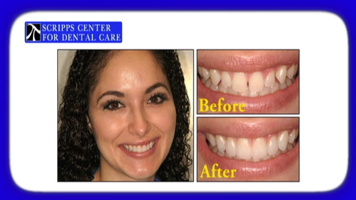 Porcelain veneers offer a natural-looking option for concealing cracks, discolorations, and other flaws in teeth. At the Scripps Center for Dental Care in La Jolla, we use porcelain veneers to give San Diego residents a completely new and natural looking smile.