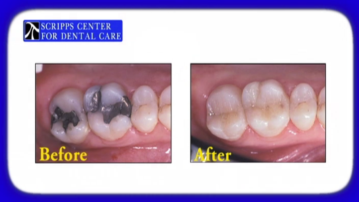 At the Scripps Center for Dental Care in La Jolla, our restorative dentists provide composite (tooth colored) fillings to our San Diego patients. Tooth-colored fillings give a more natural-looking appearance than traditional amalgam fillings.