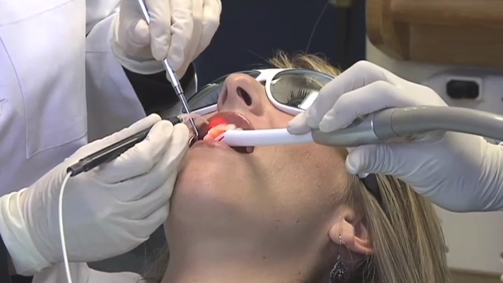 At the Scripps Center for Dental Care in La Jolla, our periodontist uses the latest laser technology to keep your gums as healthy as possible. Our San Diego periodontist uses laser as a preventive method to prevent any infection in the gum tissue.
