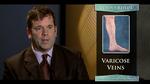2_-_varicose_veinsb