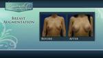 7_-_breast_augb