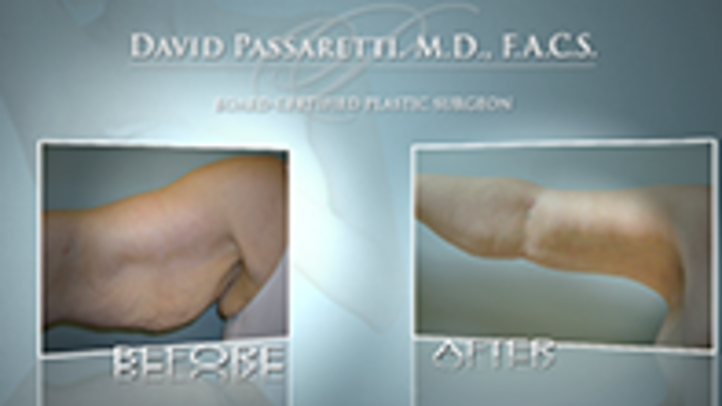 An arm lift can be performed for those who've lost a lot of weight or elasticity in their arm. Dr. David Passaretti uses this to provide an overall smaller appearance and tighter skin.