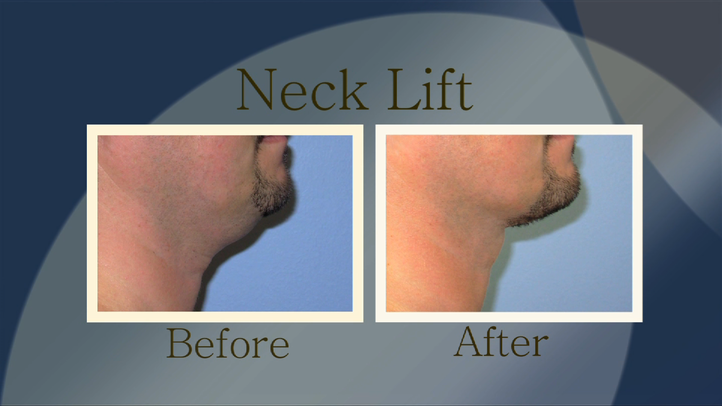 Along with the eyes, the neck is one of the first parts of the body to exhibit signs of aging. Loose neck tissue can create what's commonly referred to as a