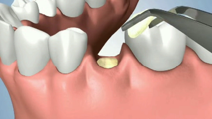 Bone grafting helps to preserve bone tissue after a tooth has been extracted. It also allows for quicker healing.