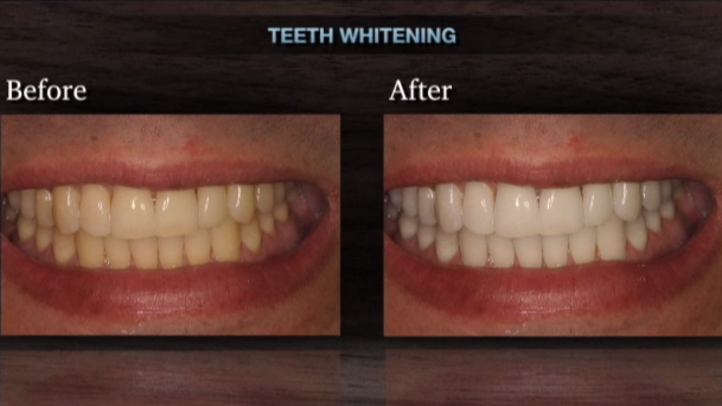 At his Doylestown dental practice, Dr. Bruce Widerman commonly performs teeth whitening.  Teeth whitening is a powerful and economical way to improve a patient's smile. There are several ways to whiten your teeth. Watch this clip as Dr. Wilderman breaks it all down for Philadelphia patients.