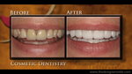 Cosmetic Dentistry – Troy and Detroit