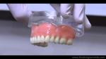Dental Implants – Troy, Michigan