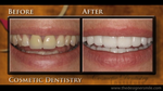 Teeth Whitening – Troy and Detroit