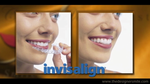 Invisalign® - Troy and Detroit