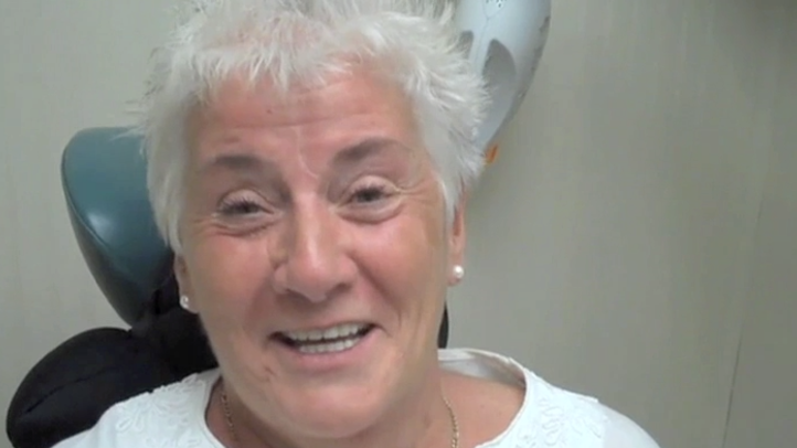Dr. Degel placed mini dental implants and dentures to treat this patient's dental issues. In this clip, our patient talks about the result of her mini dental implants and dentures that she received here several years ago and how they have improved her quality of life.