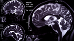 Brain Injuries – Virginia Attorneys