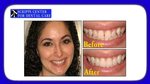 Achieve Straighter, More Uniform Teeth