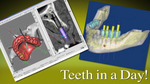 Restore Missing Teeth in One Visit
