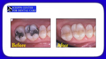 Replace Unsightly Fillings