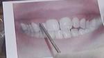 Gum Contouring-TV Story