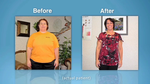Gastric Sleeve Candidates Dallas - North Texas Bariatric & General Surgery, P.A.