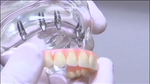 Excellent Support for Dentures, Crowns and Bridges