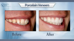 Ultra-thin Porcelain Veneers