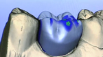 CEREC® Porcelain Crowns