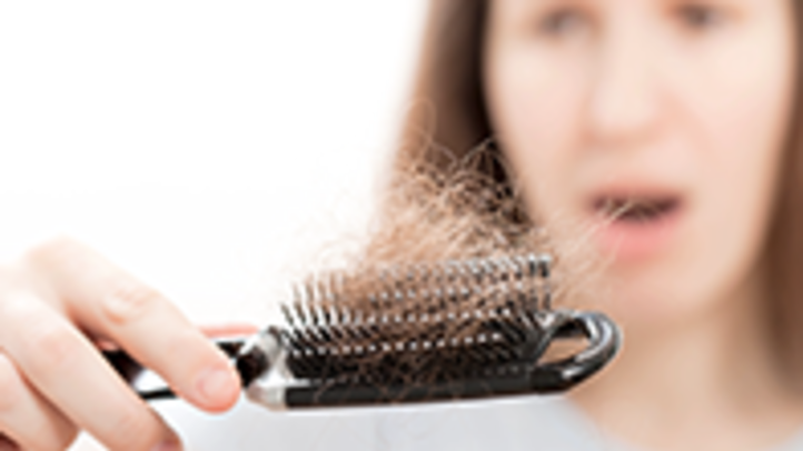 Female Hairloss