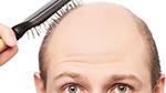 Male Hairloss