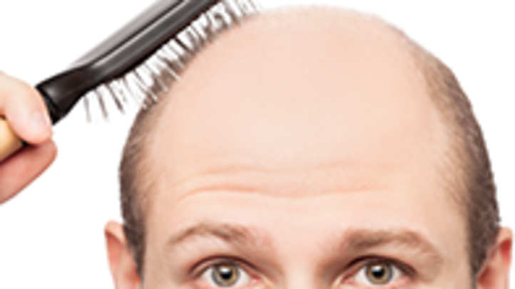Male Hairloss