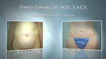 Liposuction Techniques