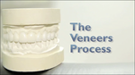 Cosmetic Dentistry of New Mexico Offers Flawless Veneers for a Dazzling Smile