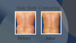 Male Body Contouring