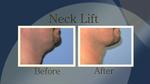 Neck Lift