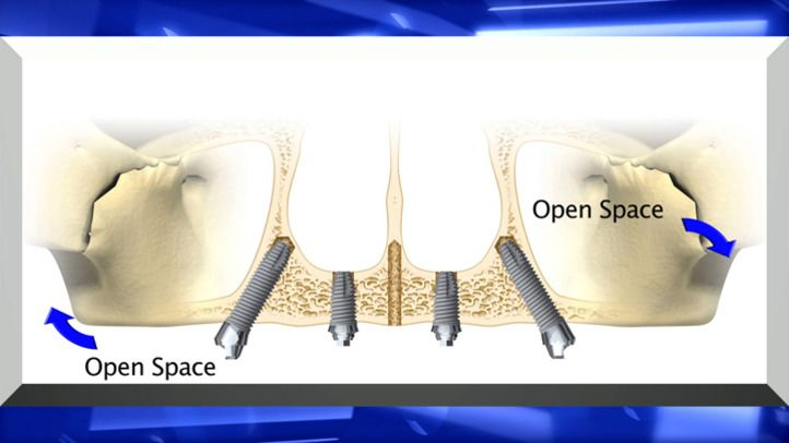 Drs. Jason and Alex Hecht offer a variety of dental implants, from single-tooth implants to All-on-4 implants, which support full dentures on just four implants. Drs. Hecht are able to provide dental implant surgery and dental restorations at Staten Island Aesthetic & Implant Dentist. Dental implants restore stability and functionality to patients' smiles.