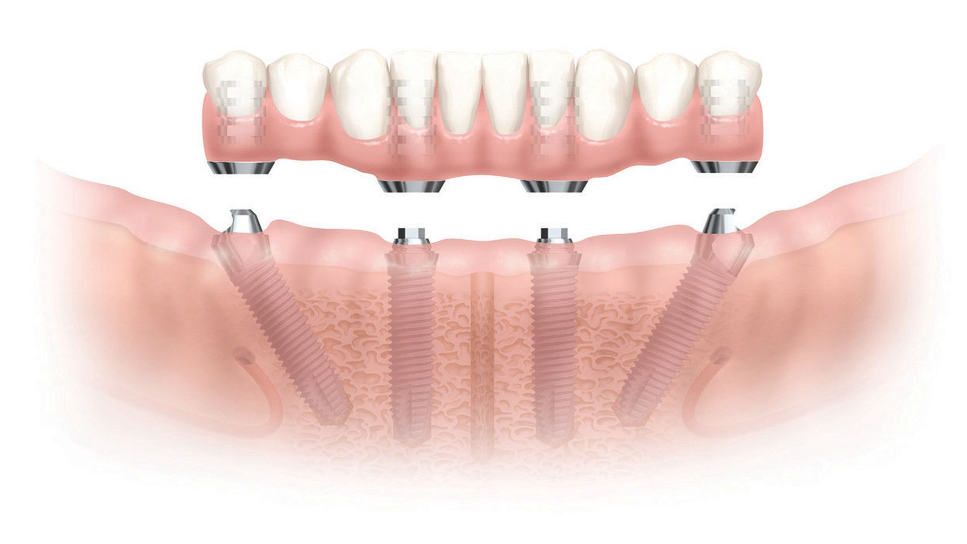 Dr. Glenn performs Dental Implant procedure