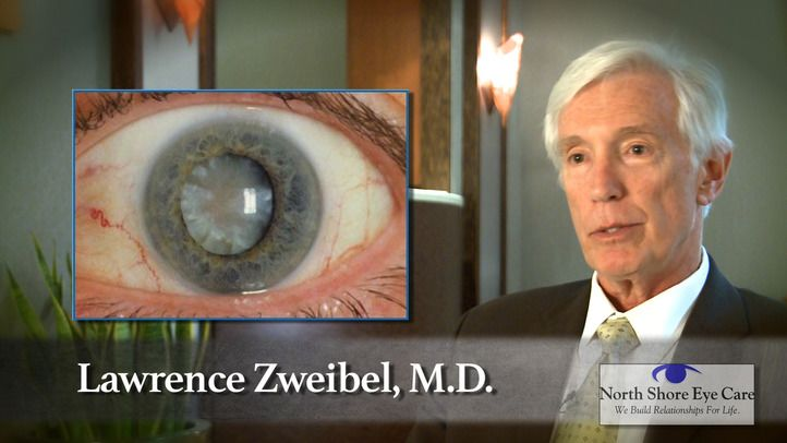 Cataract Surgery Procedure