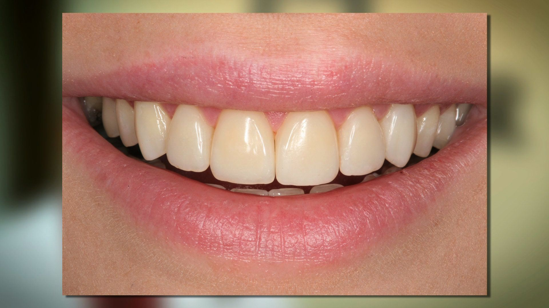 Cover Imperfections in Your Smile with Dental Bonding