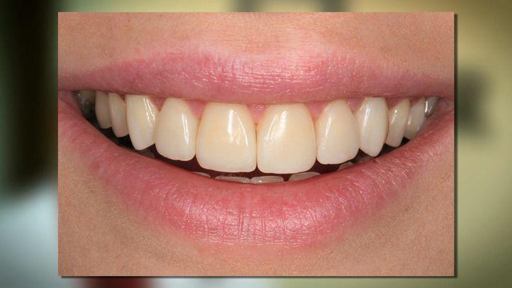 Dental bonding bismarck nd dr everett heringer download file solutioingenieria Image collections