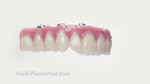 Teeth Tomorrow® Dental Bridges