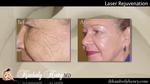 co2 Laser Treatment