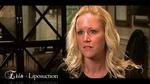Erin's Liposuction Experience