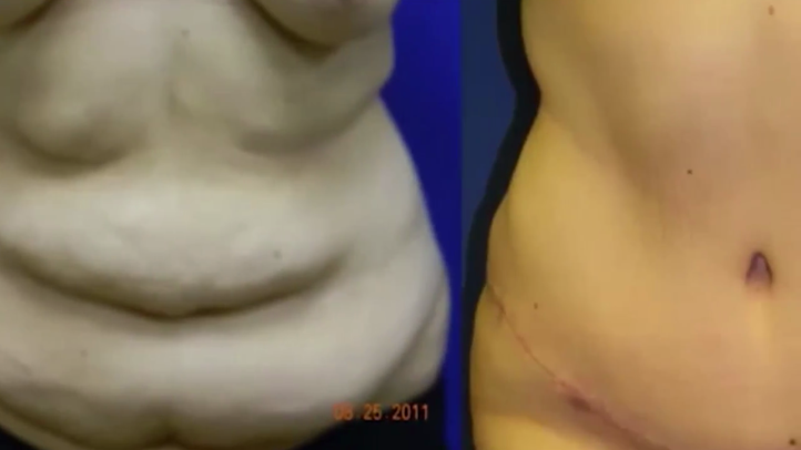 Body Contouring After Massive Weight Loss Little Rock Ar