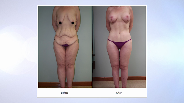 Post Bariatric Body Contouring San Antonio Tx Dr Peter Fisher