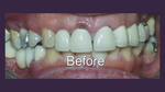 Restorative Dentistry for Form & Function