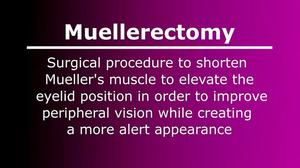 Muellerectomy (Eyelid Tightening Surgery)
