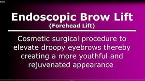 Watch an Endoscopic Brow Lift Surgery