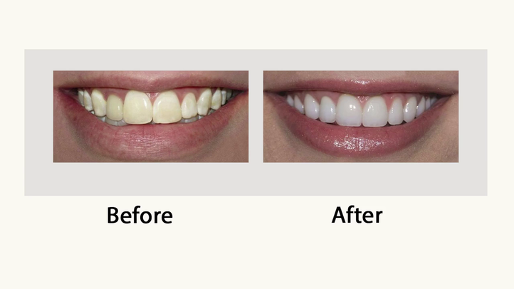 Veneers___Cosmetic_Dentistry.png?1528302745